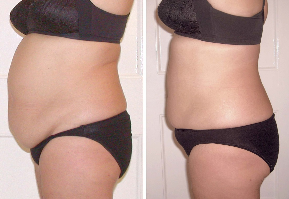 New Laser Liposuction in Miami Florida Area - Smart Lipo in Laser lipo before and after photos
